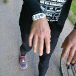 So sehen die Hände sonst nicht aus